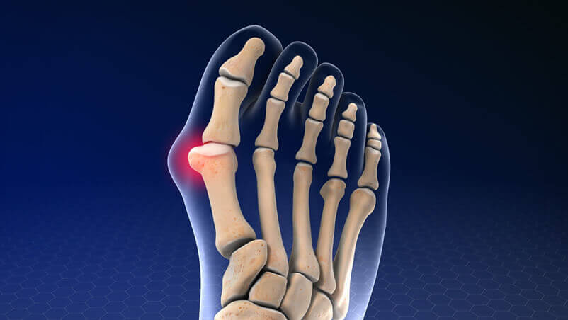Bunion Treatment Illustration