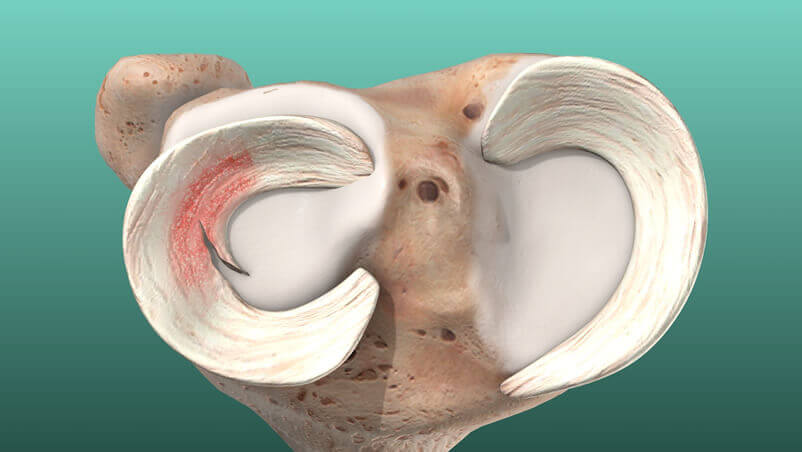 Meniscus Tear Illustration