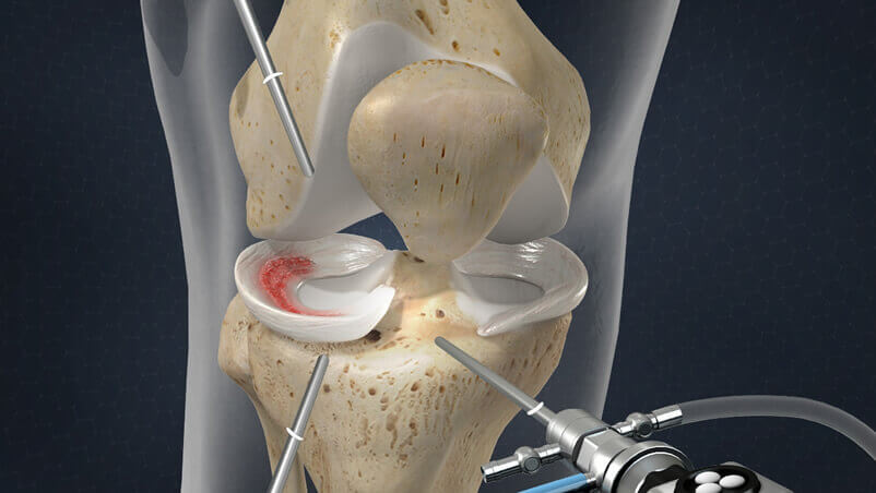 Meniscus Surgery Illustration