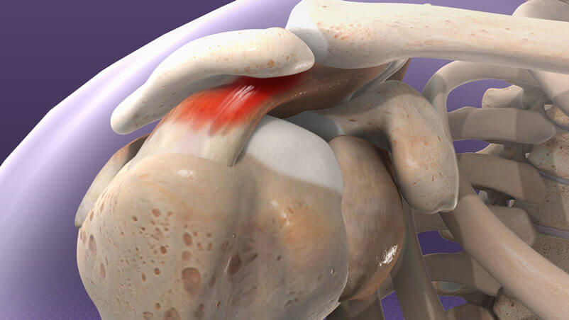 Shoulder Impingement Illustration