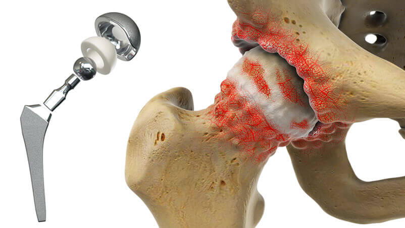 Hip Replacement Illustration