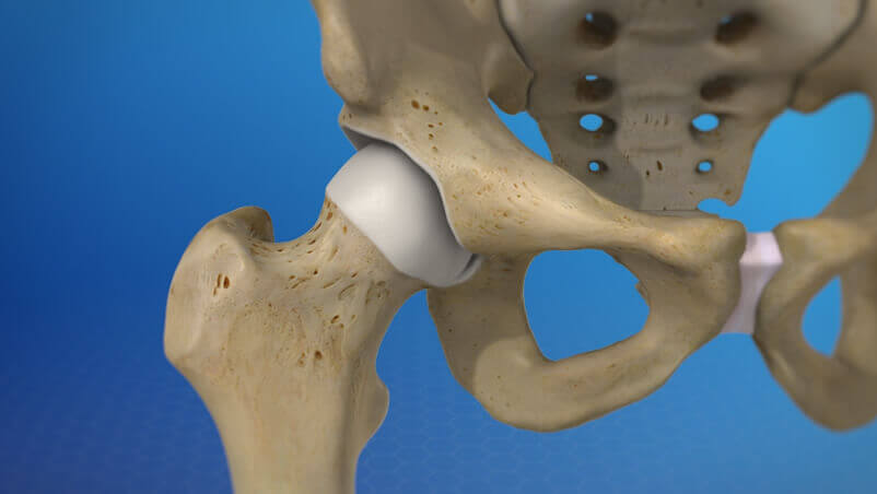 Hip Replacement Surgery Illustration
