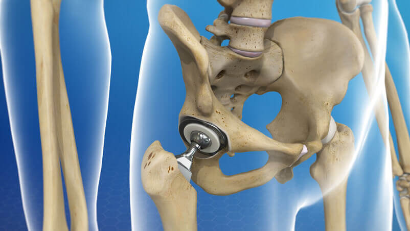 Hip Surgery Illustration