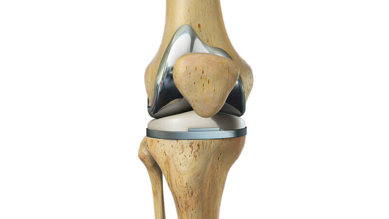 Knee Replacement Surgery Illustration